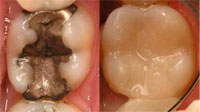 san marcos cosmetic dentist uses white fillings to repair teeth