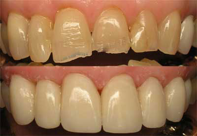 multiple crowns used by san marcos cosmetic dentist to restore chipped and fractured teeth