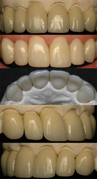 crowns used to restore smile and broken teeth