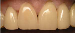 san marcos cosmetic dentist repairs worn and old teeth with dental crowns