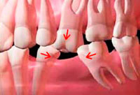 san marcos implant dentist explains tooth loss and it's impact on the mouth