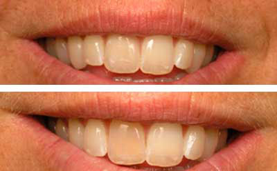 san marcos cosmetic dentist improves a very dark front tooth with a veneer