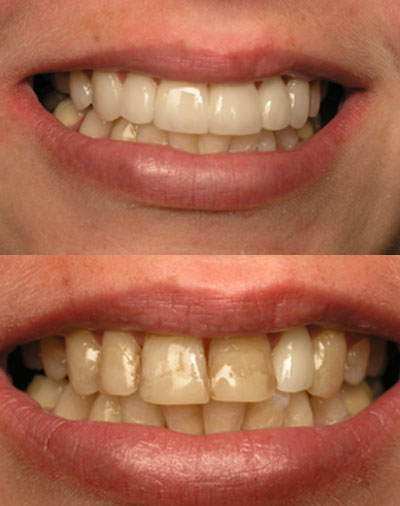 san marcos cosmetic dentist restores a defective smile with multiple veneers