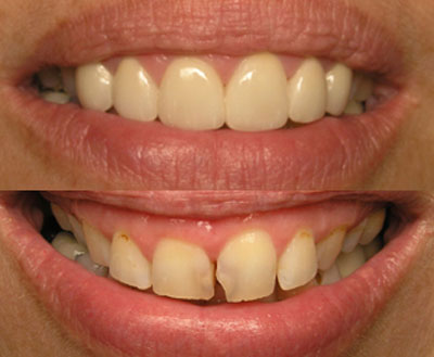 san marcos cosmetic dentist revives a failing smile with porcelain veneers