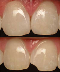 san marcos cosmetic dentist uses dental bonding technique