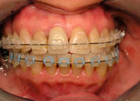 san marcos dentist offers orthodontic therapy and braces to adults and teens