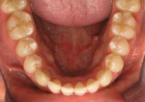 lower crowding treated with braces