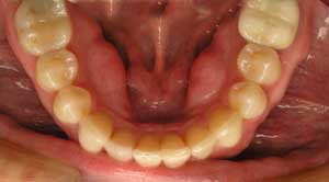braces used to correct lower crowding