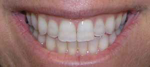 lower tooth position corrected with braces