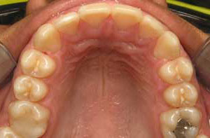 braces used to correct severe crowding