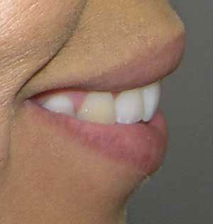 braces used to correct excessive overjet