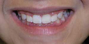 smile improved with braces