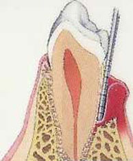 moderate periodontitis compared to healthy tooth