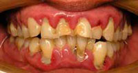 advanced or severe periodontal disease