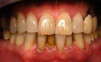 san marcos dentist diagnoses early periodontal disease in patient