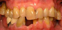 moderate periodontal disease causes destruction of bone and loss of teeth